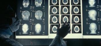 political-brain-mri-600-350x159