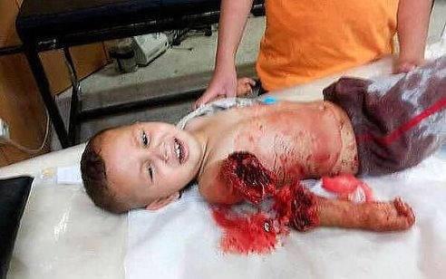 παιδί θύμα των ανθρωπιστικών βομβαρδισμών του ουκρανικού στρατού