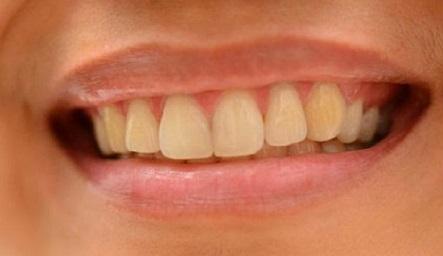 teeth kitrina1