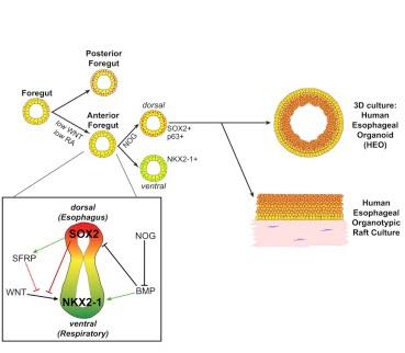 grafima oisofagos