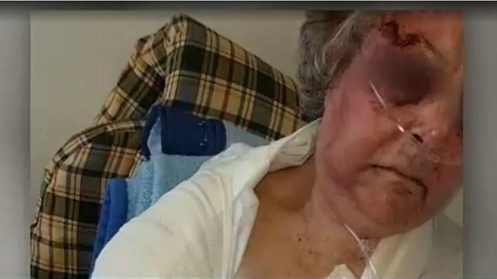 Η συγκλονιστική μαρτυρία της 85χρονης που έπεσε θύμα ληστείας: Ήθελαν να με πνίξουν.